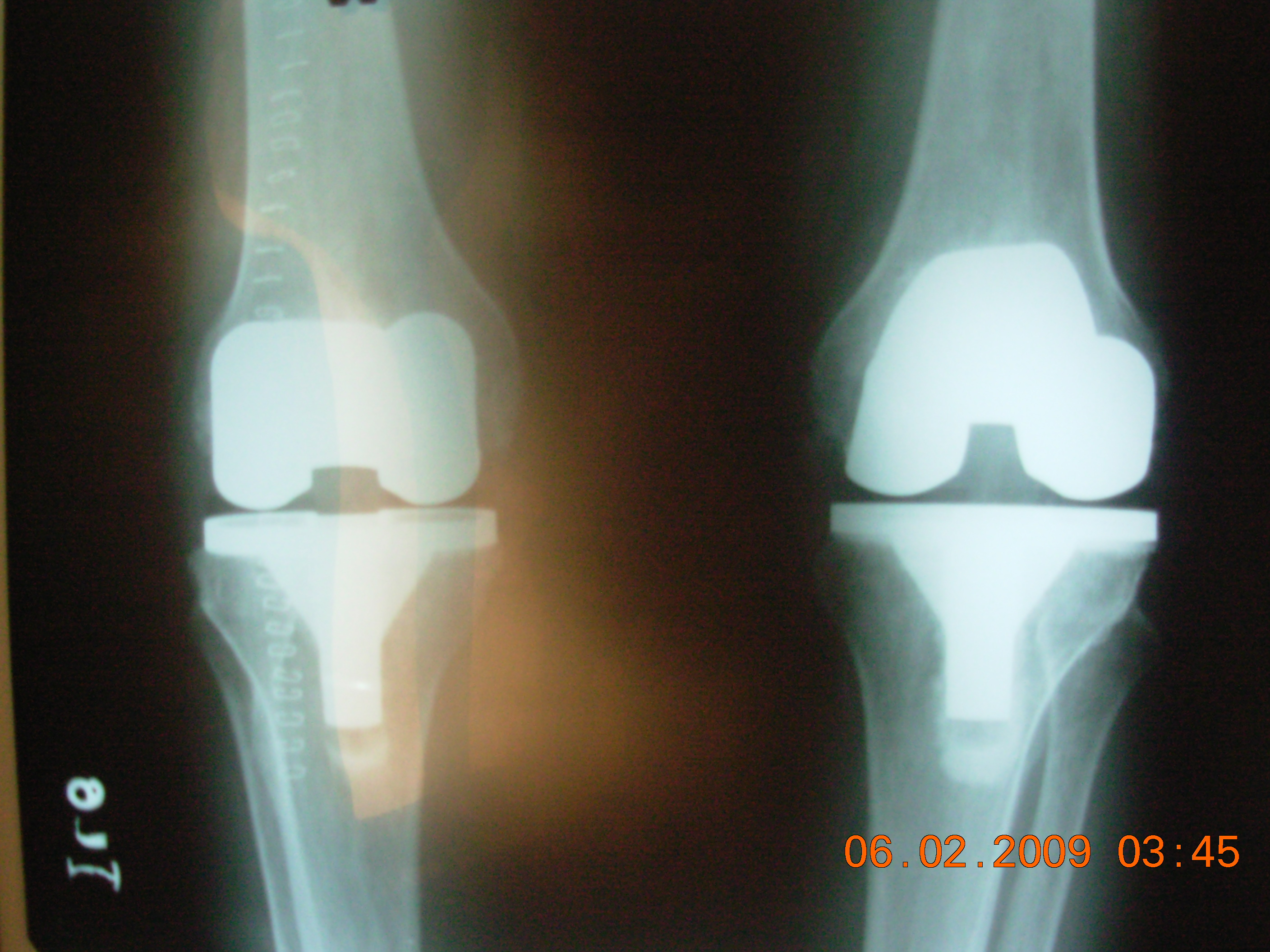 Post X Ray of Total Knee Replacement Surgery