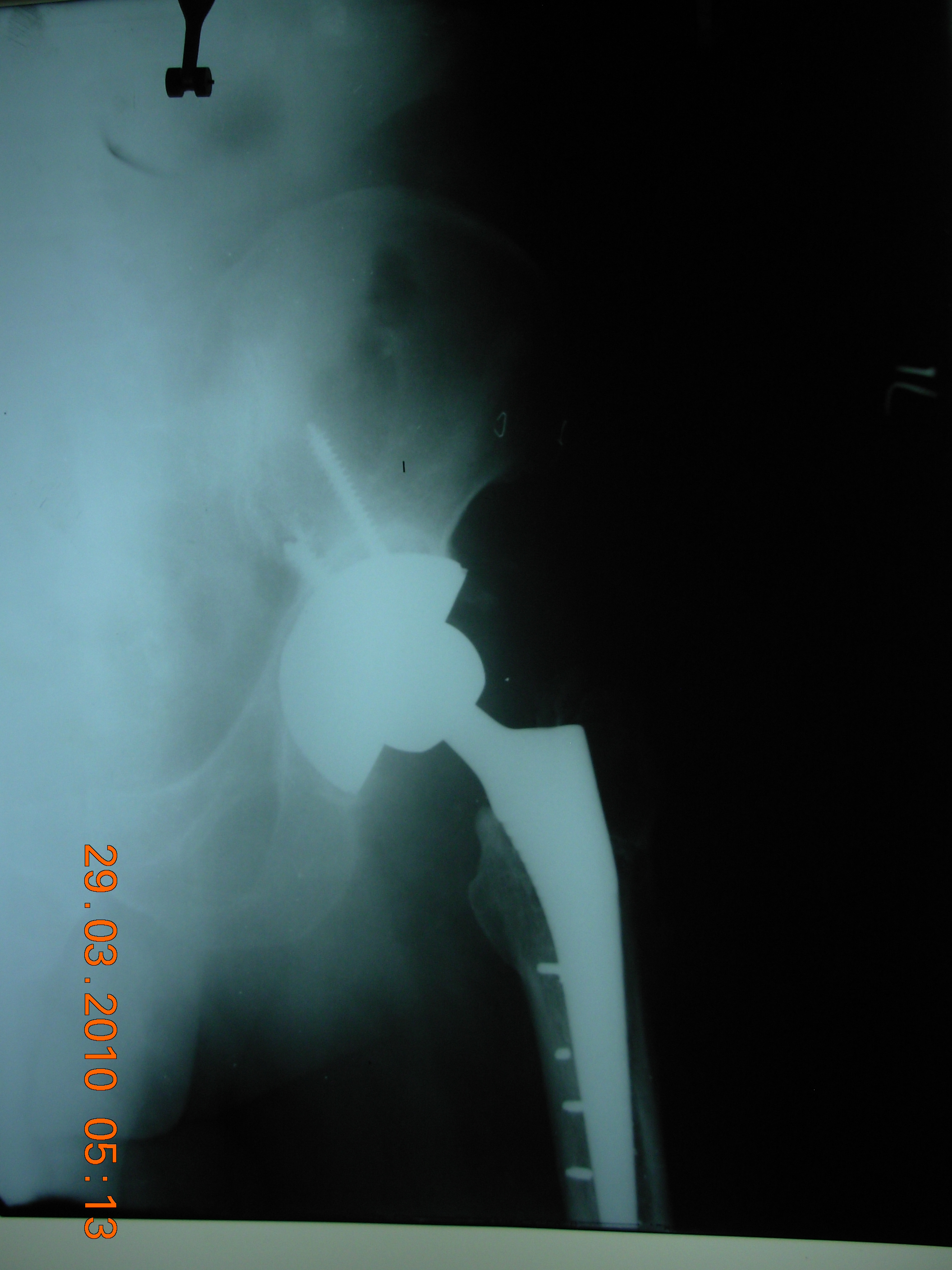 Post-op Total Hip Replacement X Ray
