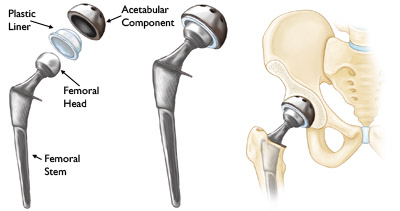 (THR) Total Hip Replacement